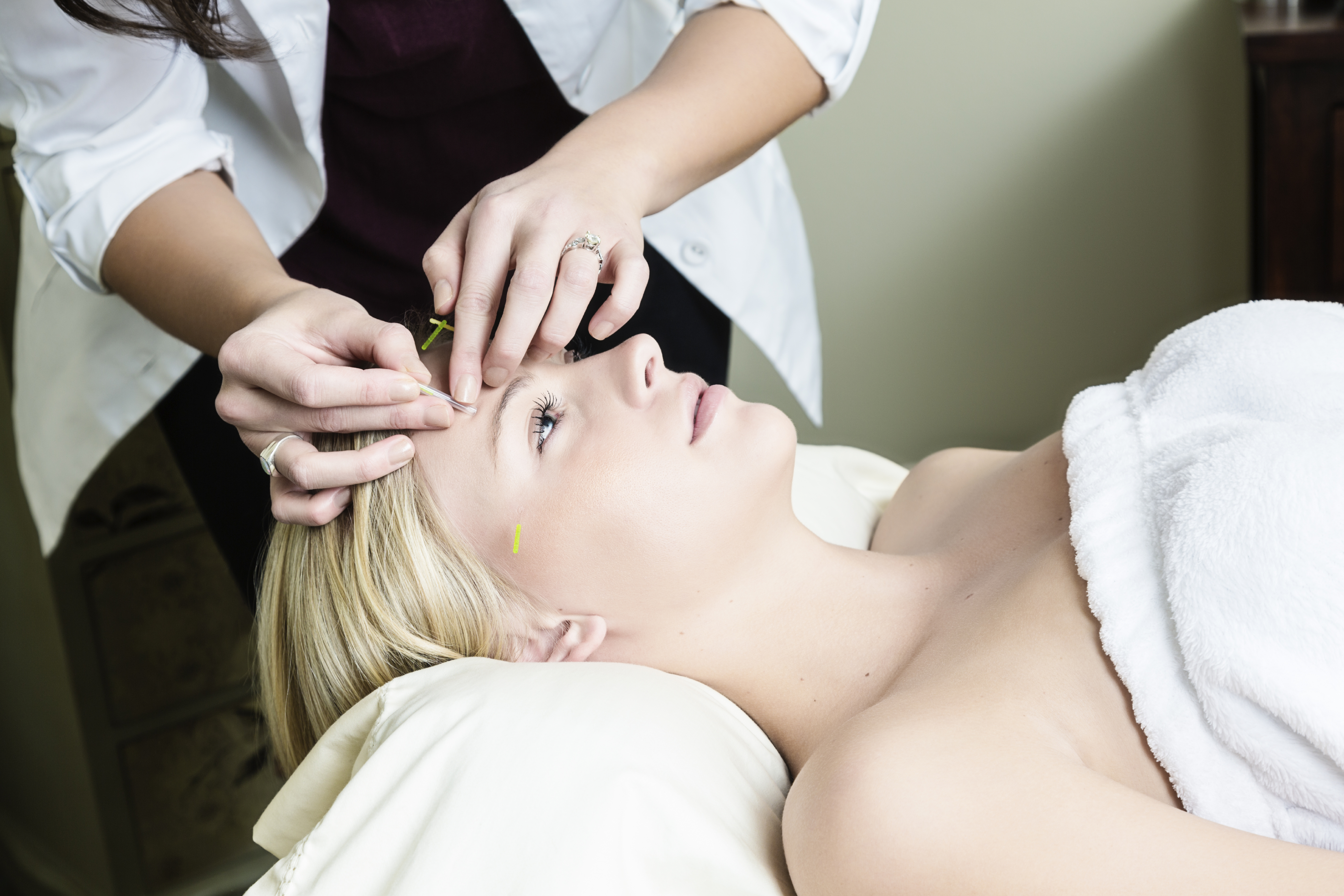 Top 10 Benefits of Acupuncture – Don't Fear the Needles!